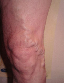 Before varicose treatment