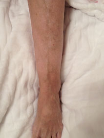 After varicose treatment